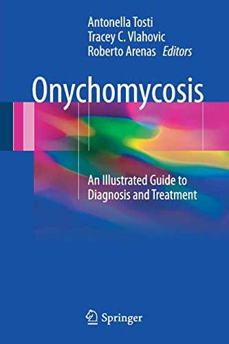 Onychomycosis: An Illustrated Guide to Diagnosis and Treatment