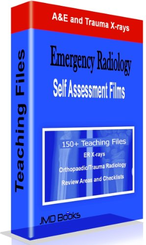 Emergency Radiology - A&E and Trauma Teaching Files - http://medicalbooks.filipinodoctors.org