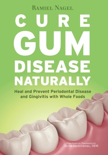 Cure Gum Disease Naturally: Heal and Prevent Periodontal Disease and Gingivitis with Whole Foods (Best Medicine For Tooth Decay)