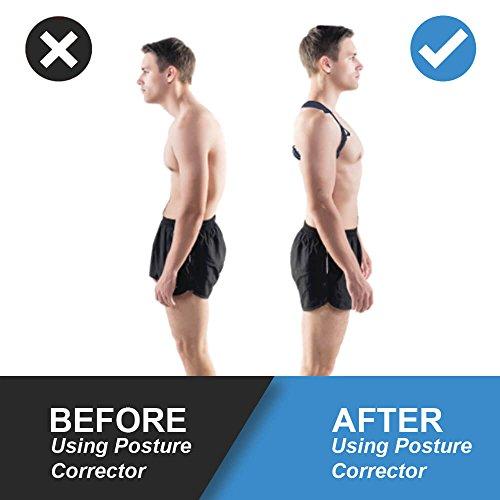 Posture Corrector for Women Men- Upper Back Support Brace, Adjustable & Discreet Cervical Clavical Strap to Improve Bad Posture, Shoulder Neck Back Pain Relief FREE 4 Resistance Bands (Pack 2) by TrustHAD (Image #1)
