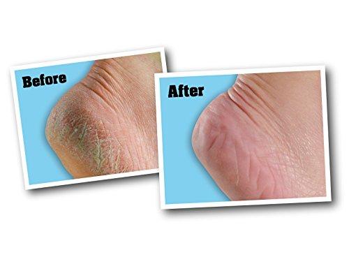 O\'Keeffe\'s Healthy Feet Foot Cream 3.2 ounce Jar