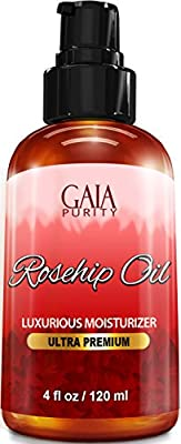 Rosehip Oil, Large 4oz - All Natural, Best Moisturizer for Face, Hair & Body to Help Heal Dry Skin, Diminish Scars, Discoloration, Acne, Wrinkles, Stretch Marks, Eczema, Skin Tags and Brittle Nails. Cold Pressed, Unrefined, Virgin Rose Hip Seed Oil with A