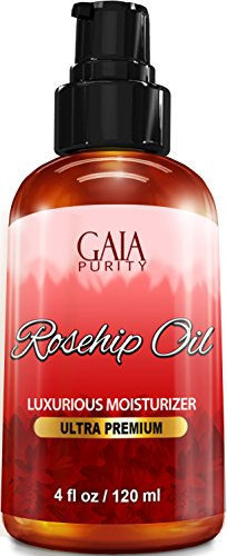 - Rosehip Oil, Large 4oz - All Natural, Best Moisturizer for Face, Hair & Body to Help Heal Dry Skin, Diminish Scars, Discoloration, Acne, Wrinkles, Stretch Marks, Eczema, Skin Tags and Brittle Nails. C
