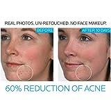 La Roche-Posay S03572 Effaclar Duo Acne Treatment