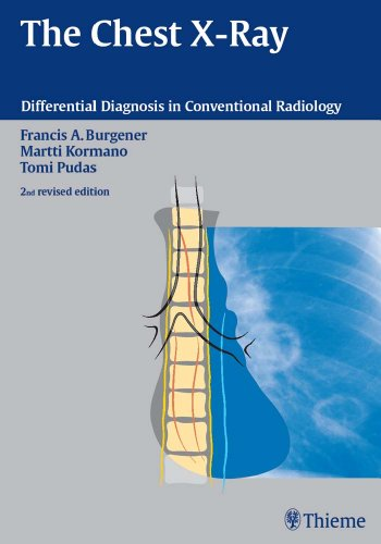 The Chest X-Ray Differential Diagnosis in Conventional Radiology (2nd 2006) [Burgener, Kormano & Pudas]