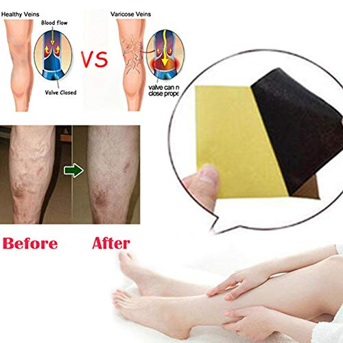 Dragon Honor 18Pcs Pat Varicose Treatment Plasters Chinese Traditional Herbal Medicine Pads Cure Spider Veins Vasculitis ()