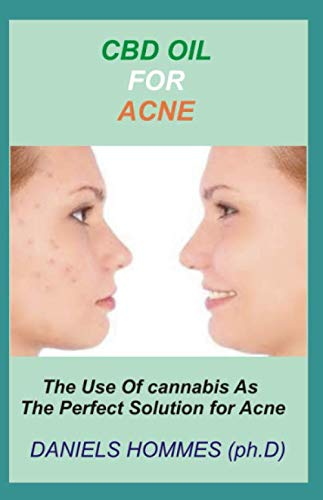 CBD OIL FOR ACNE: Comprehensive Guide on Using CBD Oil to cure Acne Permanently (Best Acne Scar Treatment Cream)