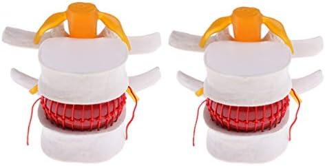 2個 人間脊椎腰椎 椎間板突出モデル 倍率2倍