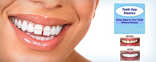 IVORIE Teeth Gap Bands Orthodontic Bands Clear Dental Elastic Bands 100/Pk (1/8