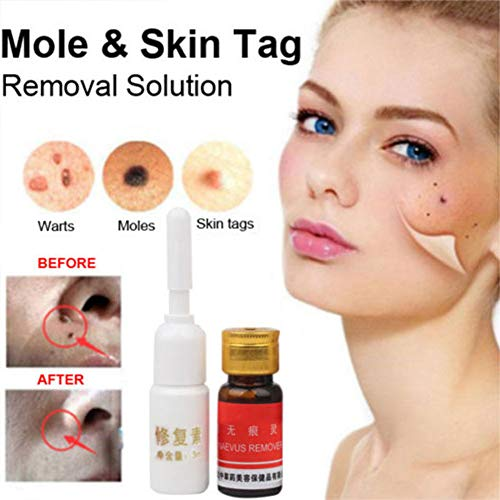Accreate 2 Pcs Set Wart Mole Skin Tag Removal Solution Removal