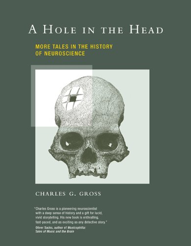 a hole in the head - 4