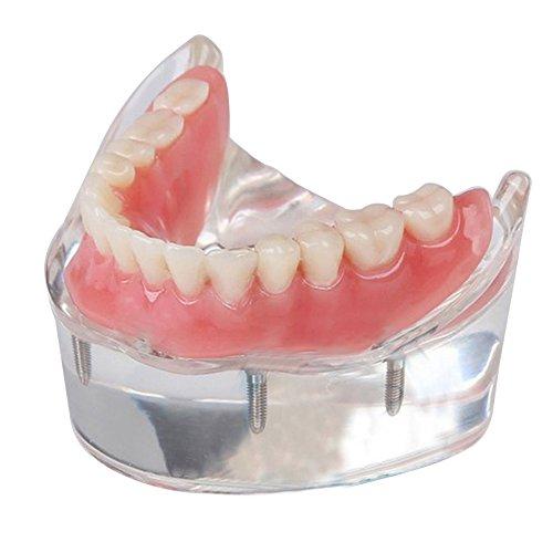 genmine Dental Overdenture Teeth Model Precision Implants Inferior with 4 Implants Demo