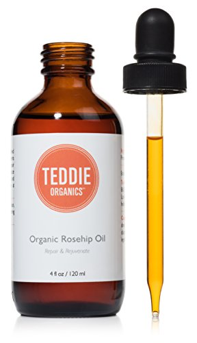 Organic Rosehip Oil – 100% Pure Unrefined Cold Pressed Rosehip Seed Oil - Best Moisturizer for Face, Hair - Great for Fine Lines, Wrinkles, Acne Scars, Sun Damage, Stretch Marks, Eczema, Psoriasis