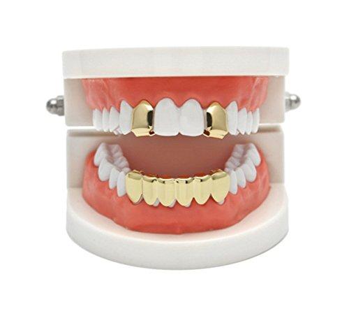 gold cap for teeth - 3