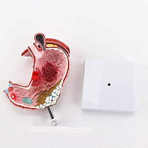 Maaganatomiemodel, medisch anatomisch model 1: 1 Menselijk maaglaesiemodel Anatomie Pathologisch model van de maag.Essentiële hulpmiddelen voor gastro-enterologie