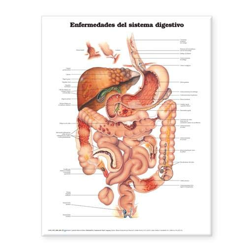Diseases of the Digestive System Anatomical Chart in Spanish (Enfermedades del Sistema Digestivo) Anatomical Chart Company