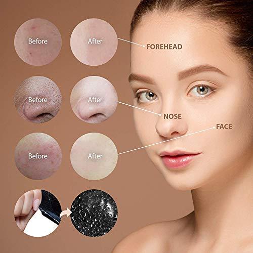 ELOBARA Blackhead Remover Mask Activated Charcoal Facial Acne Pore tube 50g