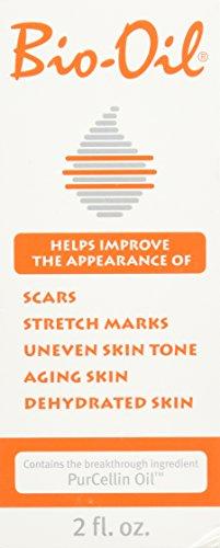 Bio-Oil 2oz: Multiuse Skincare Oil