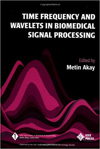 Time frequency and wavelets in biomedical signal processing metin time frequency and wavelets in biomedical signal processing 1st edition fandeluxe Image collections