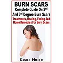Burn Scars : Complete Guide On 2nd And 3rd Degree Burn Scars: Treatments, Healing, Fading And Home Remedies For Burn Scars