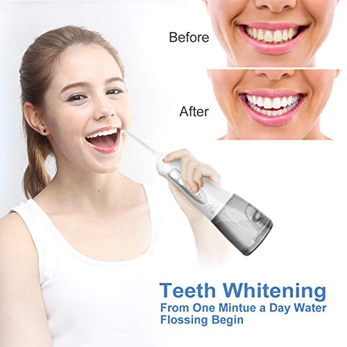 Cordless Water Flosser Teeth Cleaner, ZIONOR 300ML Rechargeable Portable Water Flosser, Professional 3 Modes Oral Irrigator 5 Detal Water Jets, Teeth Whitening IPX7 Waterproof Design for Home Travel