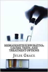 Best options for hidradenitis suppurativa