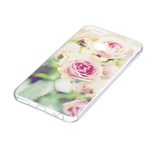 Funda para Xiaomi Mi 5X / Xiaomi Mi A1 , IJIA Transparente Colorido Plumas Bird TPU Silicona Suave Cover Tapa Caso Parachoques Carcasa Cubierta para Xiaomi Mi 5X / Xiaomi Mi A1 (5.5) HX26