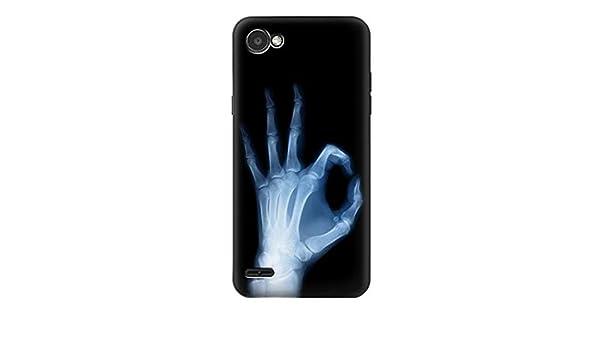 Innovedesire X-Ray Hand Sign OK Funda Carcasa Case para LG ...