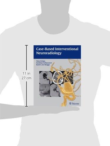 Case-Based Interventional Neuroradiology