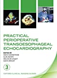 Best Echocardiography Textbooks - Practical Perioperative Transoesophageal Echocardiography (Oxford Clinical Imaging Guides) Review