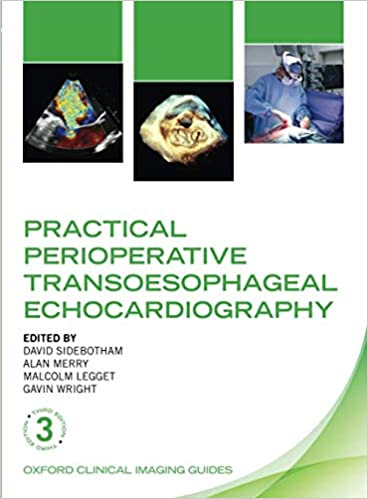 Practical Perioperative Transoesophageal Echocardiography (Oxford Clinical Imaging Guides), 3rd Edition - Original PDF