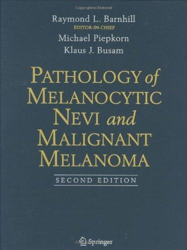 Pathology of Melanocytic Nevi and Malignant Melanoma Pdf