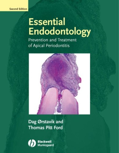 Essential Endodontology: Prevention and Treatment of Apical Periodontitis, by Dag Orstavik, Thomas R. Pitt Ford