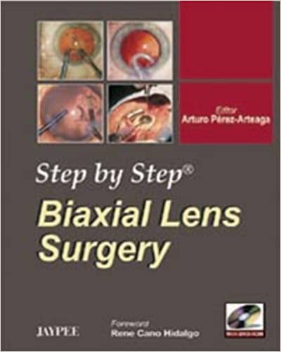 Biaxial Lens Surgery (Step by Step)