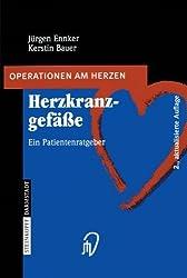 Herzkranzgefässe: Ein Patientenratgeber (Operationen Am Herzen) (German Edition)