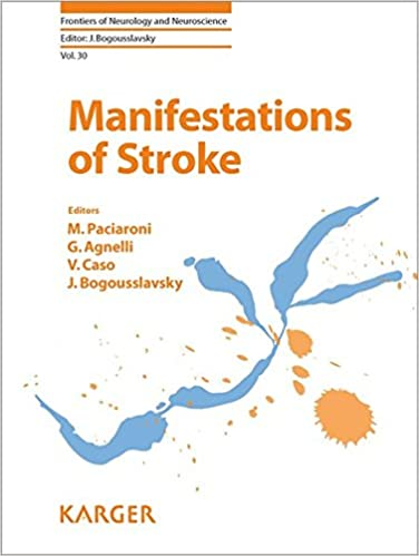 Manifestations of Stroke (Frontiers of Neurology and Neuroscience, Volume 30)