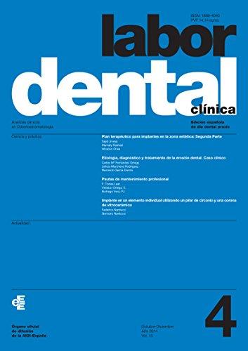 Descargar Libro Labor Dental Clínica Nº4-2014 Varios Autores
