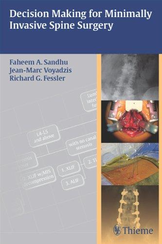 Decision Making for Minimally Invasive Spine Surgery (1st 2011) [Sandhu, Voyadzis & Fessler]