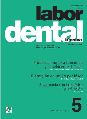 Labor Dental Técnica 5-2013 (Spanish Edition)