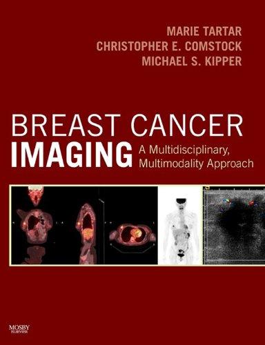 Breast Cancer Imaging E-Book: A Multidisciplinary, Multimodality -