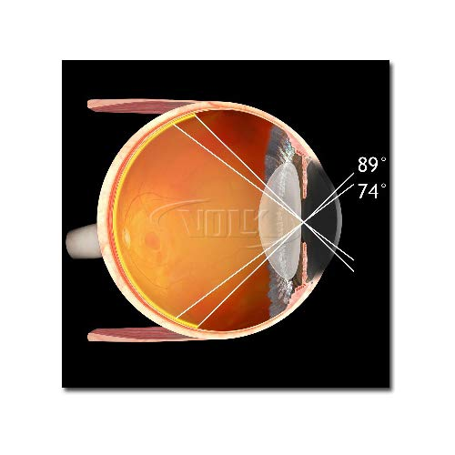Volk 90D Non Contact Slit Lamp Lens - Blue