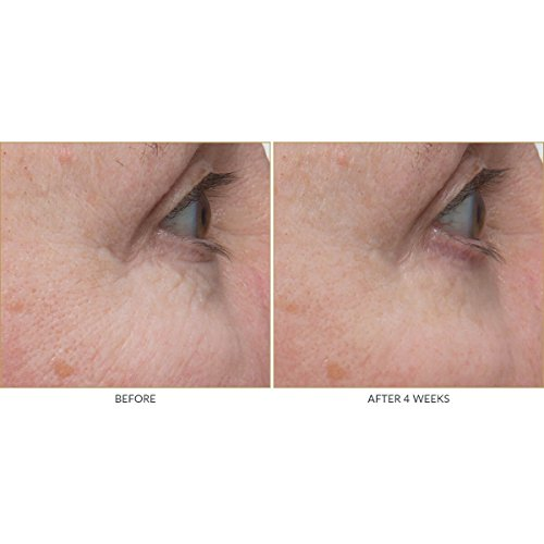Amazon Com Kate Somerville Retinol Firming Eye Cream Eye