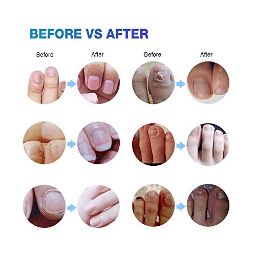 Ariella Nail Fungus Treatment for Toenail and Fingernail, Maximum Strength Antifungal Nail Treatment Hydrates, Renews Yellow, Cracked and Split Nails
