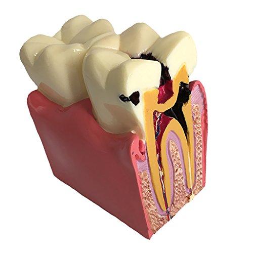 Fityle 横断面 歯の模型 虫歯モデル 齲蝕 比較研究 プロ 教育ツール 取り外し可能 学習