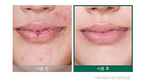 Somebymi AHA BHA PHA MIRACLE SERUM 50ml / After using Miracle Toner by Somebymi (Image #4)