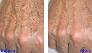 TCA 35% Fine Lines, Wrinkles, Age Spots, Lip Creases, Crepey Skin by RePare