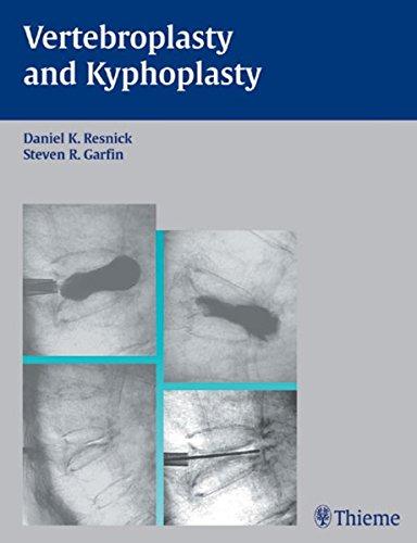 Vertebroplasty and Kyphoplasty (AAN)
