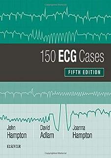 150 ECG Cases 5e Problems