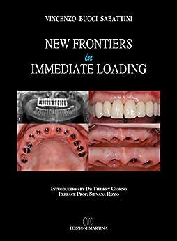 New Frontiers In Immediate Loading (English Edition) de [Bucci Sabattini, Vincenzo]