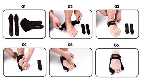 Aider Bunion Support, Comprehensive Bunion Corrector & Bunion Relief ToePal kit-5 Piece Hallux Valgus & Bunion Pads, Toe Spacers, Toe Separators, Bunion Splint, Toe Straightener (Left (black)) by Aider (Image #6)